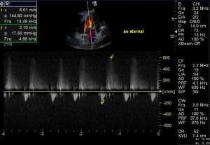 Aortic insufficiency in a dog with systemic hypertension