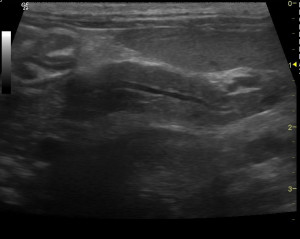 Left limb of the pancreas in a cat with suspected pancreatitis and IBD